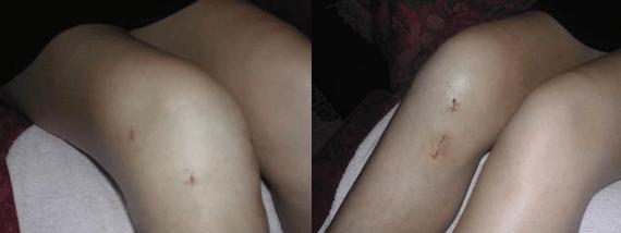 Chirurgie genou