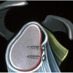 Chirurgie Epaule