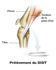 Ligamentoplastie par DIDT