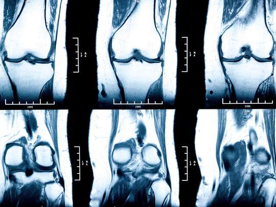 IRM du genou