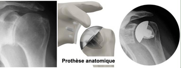 prothese epaule anatomique